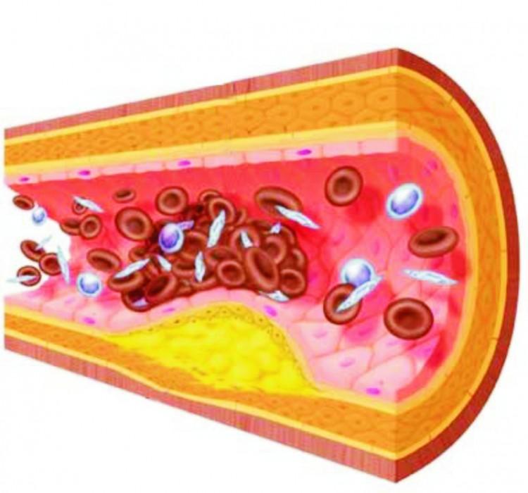какой уровень холестерина должен быть у мужчины